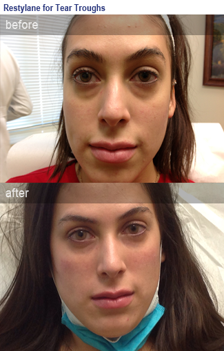 Photo of before and after using Restylane