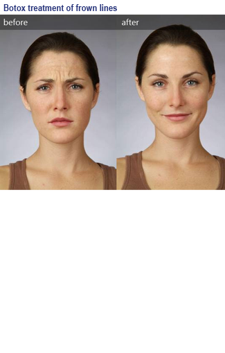 Photo before and after botox