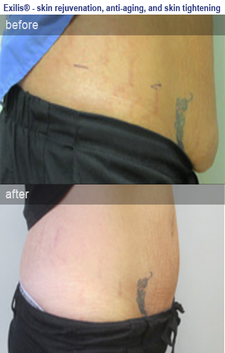 Photo before & after skin tightening