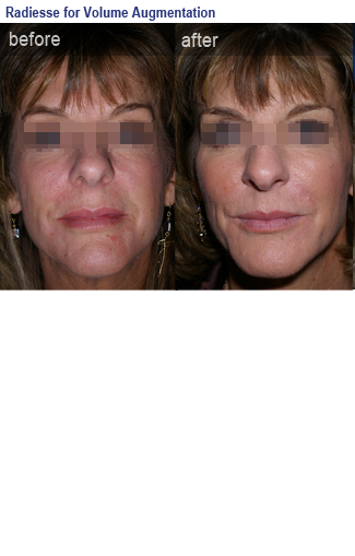 Photo of before and after using fillers