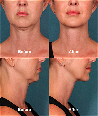 Photo before and after Kybella