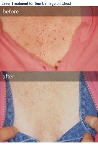 photo before and after leasions of the skin