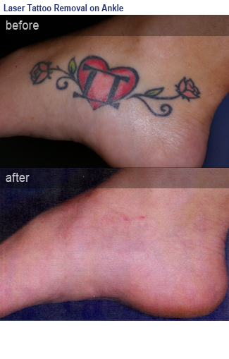 My Skin Care Doctor - Tattoo Removal