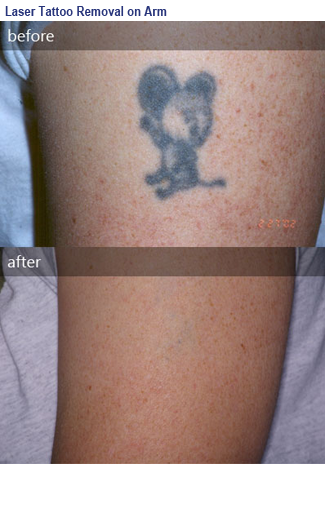 photo before and after tattoo removal